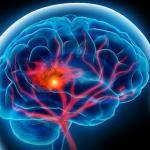 مشكلات الذاكرة مؤشر على الإصابة بجلطة بين الأكثر تعليماً