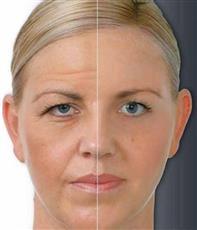 كيف سيكون وجهك مع التقدم بالعمر!