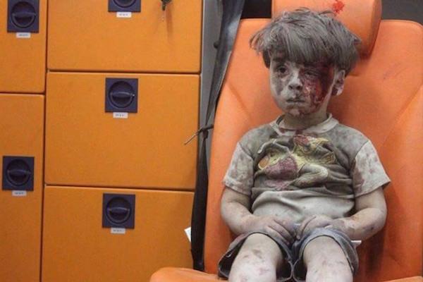 وفاة شقيق عمران السوري متأثرا بجراحه