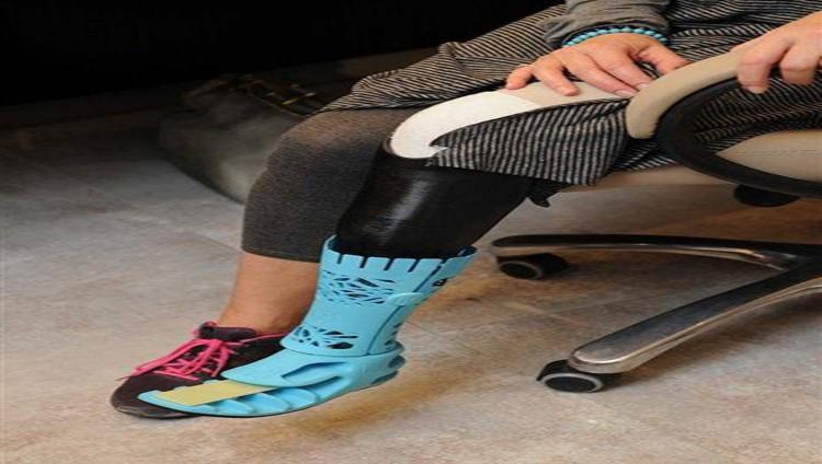 """""""صحة دبي"""" تنجز أول ساق اصطناعية ثلاثية الأبعاد على مستوى الشرق الأوسط"""