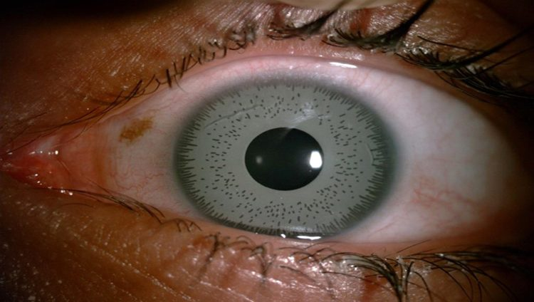 غيرت لون عينيها فكادت أن تُحرم البصر